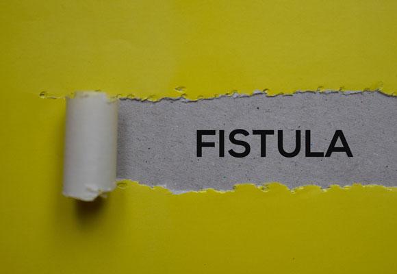 Anal abscess fistula